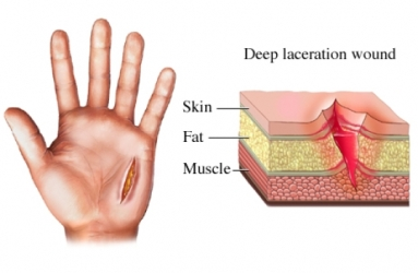 Lacerations and Plastic Surgery