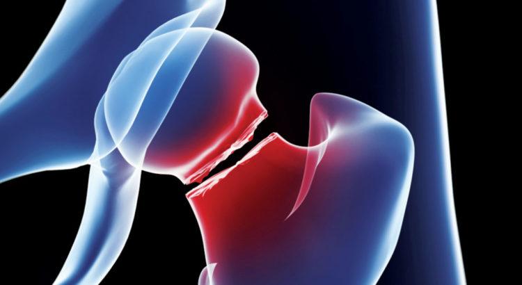 geriatric-fracture